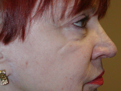 Facelift-Eyelid-FatStem-Cell-after-side1-400x300.jpg