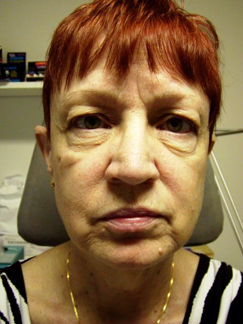 Facelift-Eyelid-FatStem-Cell-Before-front.jpg