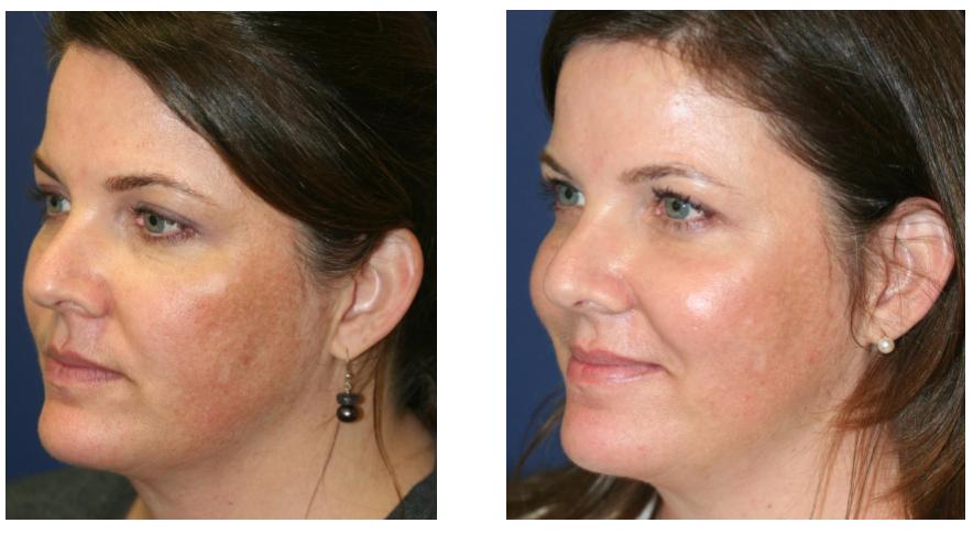 skin resurfacing 3.PNG