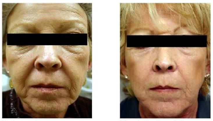 skin resurfacing 1.PNG