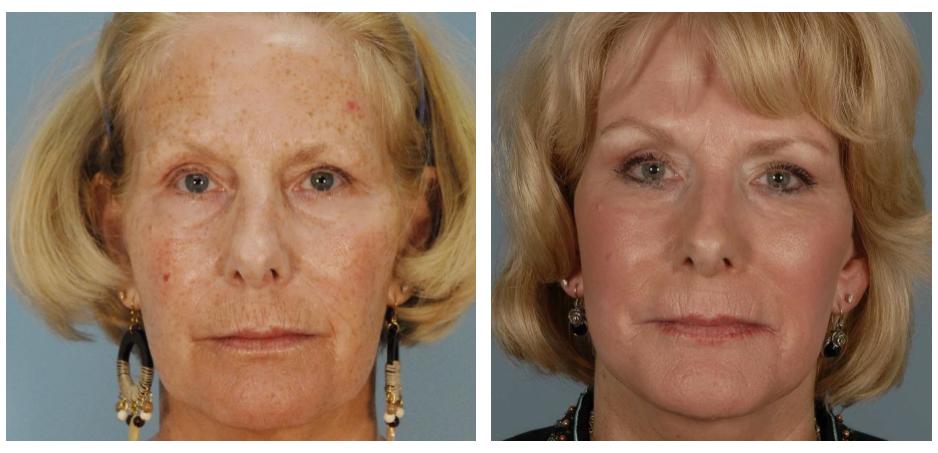 skin resurfacing 2.PNG