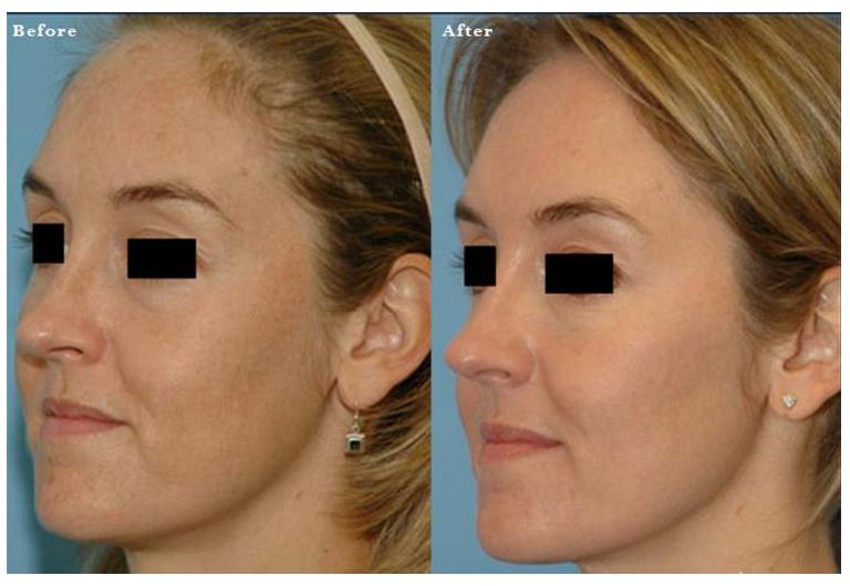 skin resurfacing 4.PNG