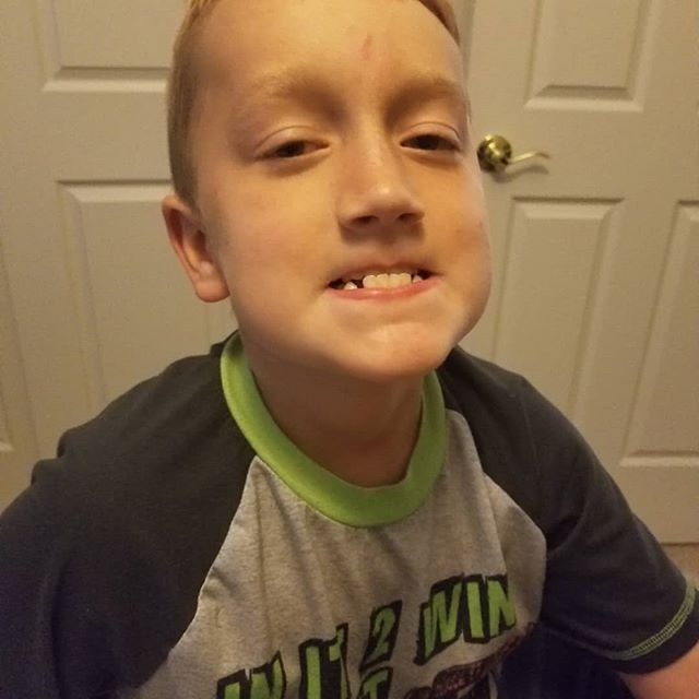 My silly guy lost two more teeth. He likes to get them out asap but that last one took him two weeks