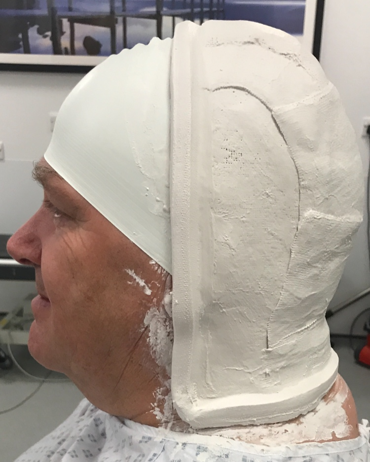 Mask fitting for radiotherapy sessions