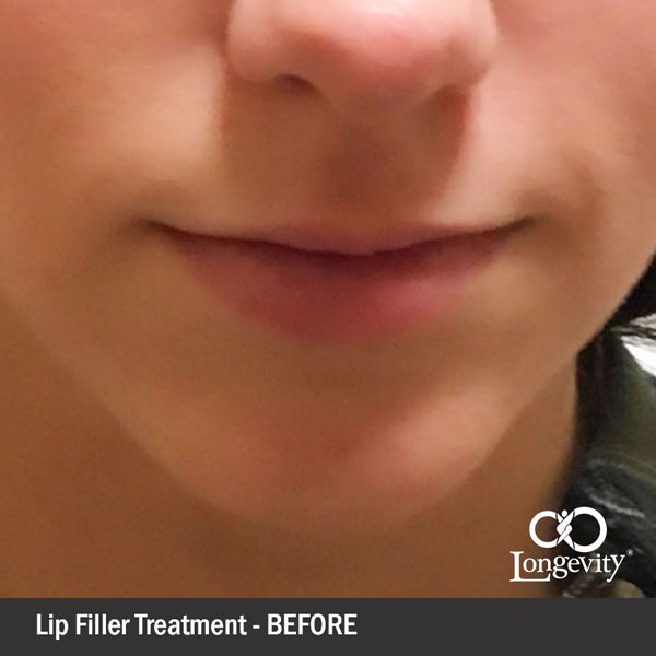 Fillers-lips-before.jpg