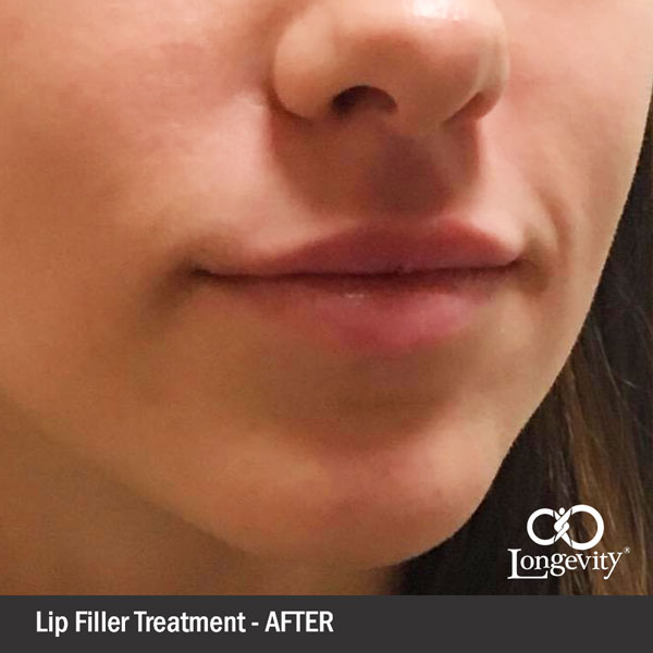 Filler-Lips-After.jpg