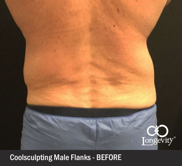 Coolsculpting-flanks-before.jpg