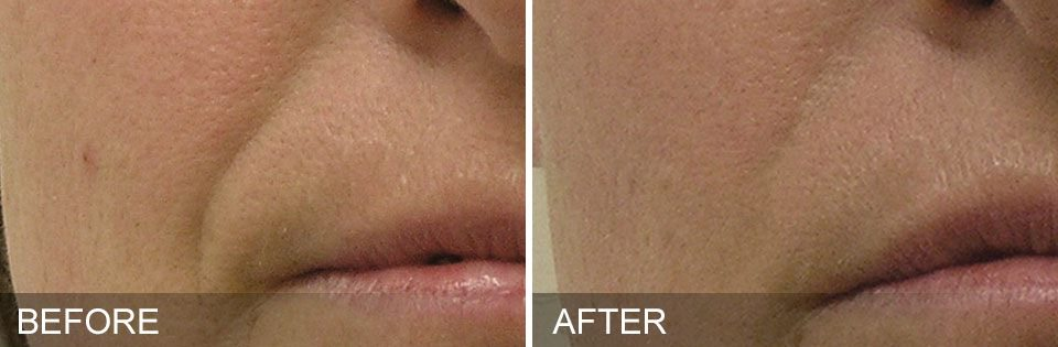 Hydrafacial™ can also reduce the presence of nasolabial folds (lines stemming from the nose). The treatment increases cell production and collagen which diminishes the lines.