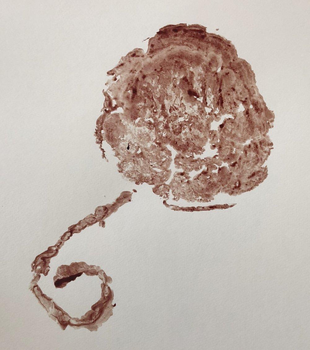 A placenta print makes a beautiful and unusual birth keepsake.