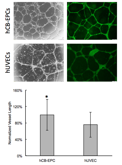 CELLvo™ hCB-EPCs have greater intrinsic vessel formation capacity relative to hUVECs. CELLvo™ hCB-EPCs and hUVECs were seeded at high density onto Matrigel® and incubated for 18 hours. Spontaneous vessel formation was observed by microscopy (top). Vessel formation was quantified (in terms of tube length) using the NIH angiogenesis analyzer ImageJ plug-in (bottom). * p<.05 vs. hUVEC.
