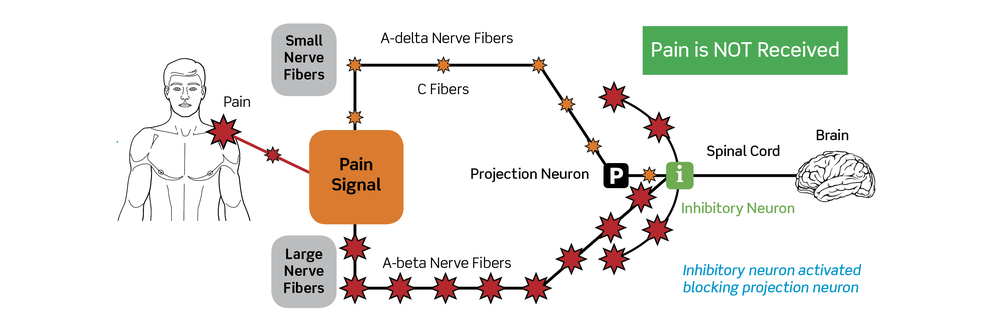 Pain Gate Theory Graphic.png