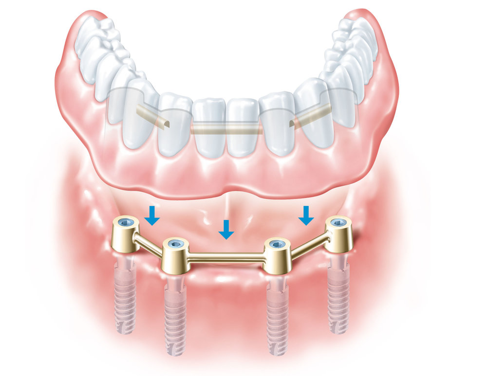 implant-secured-dentures.jpg