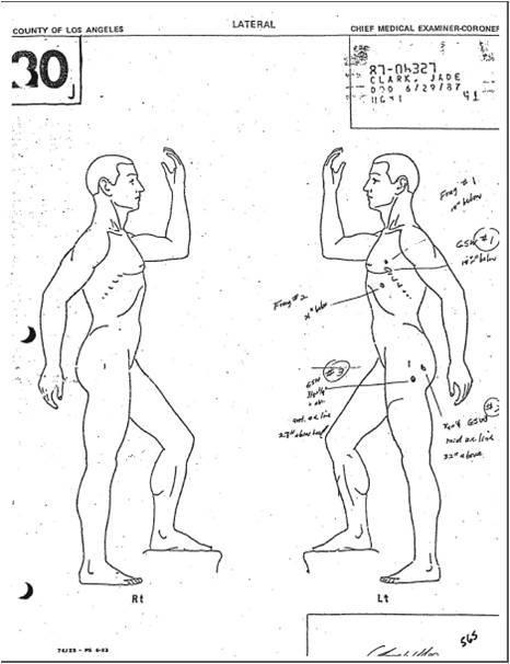 Coroner diagram