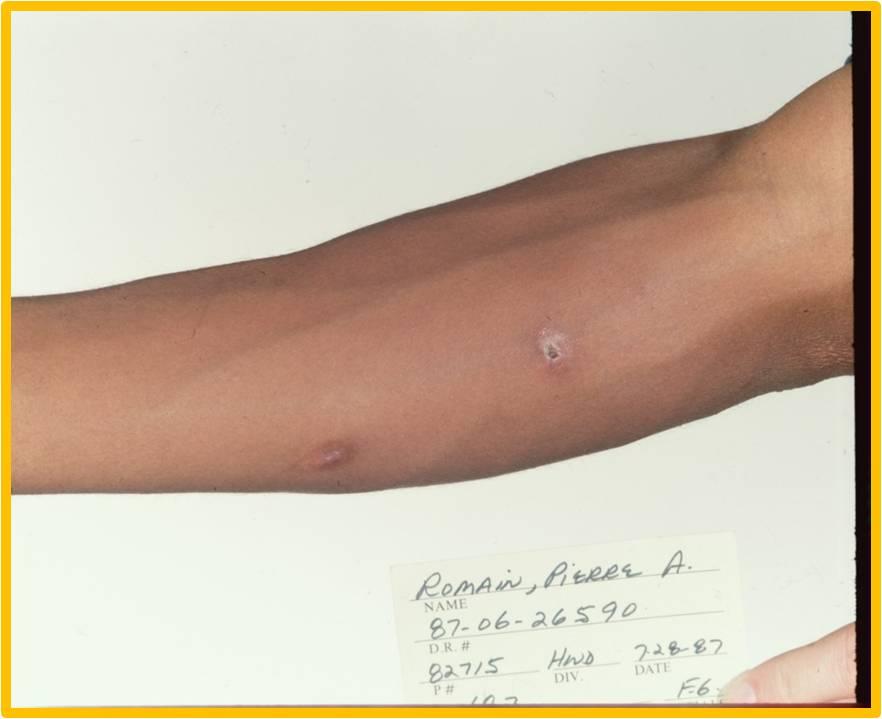 Gunshot wound on Pierre Romain's right forearm