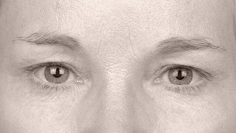 Endotine Forehead Procedure Eyes After