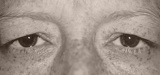 example of patient with Brow Ptosis