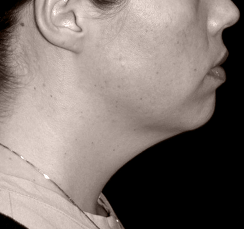 patient before Endotine Ribbon procedure neck is sagging