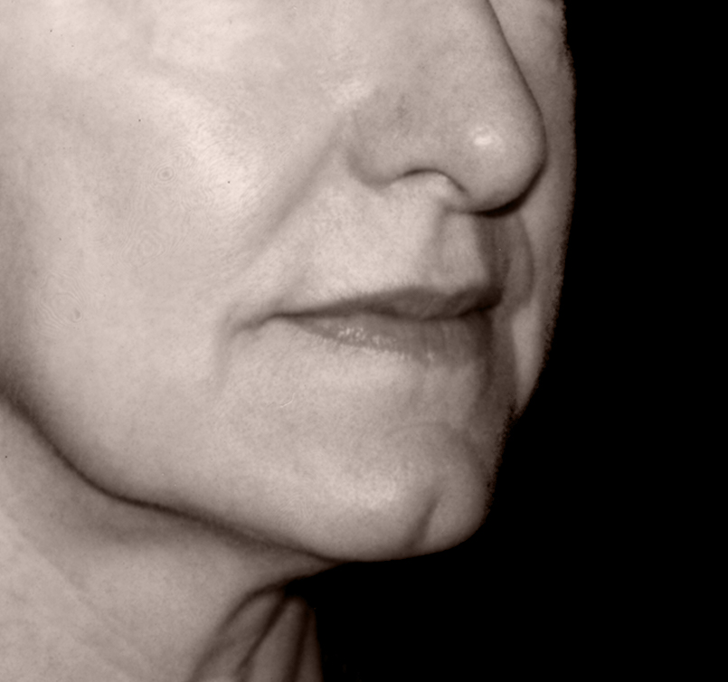 patient before Endotine Midface procedure with flat cheek