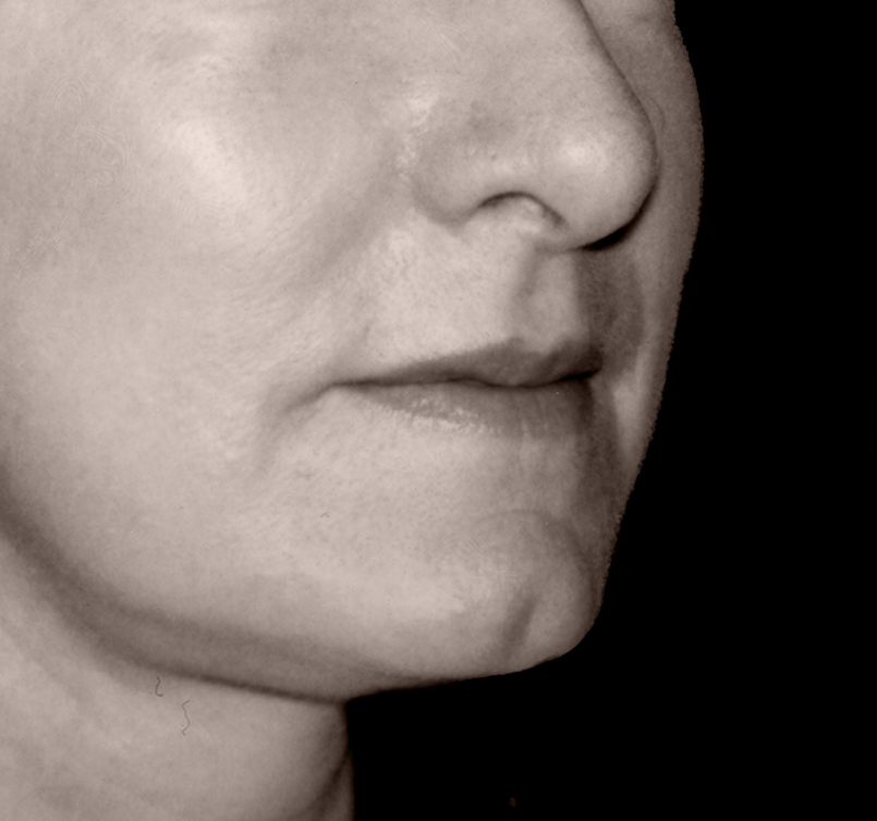 patient after Endotine Midface procedure with youthful cheek