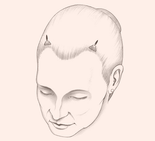 illustration of Endotine Forehead implant located behind the hairline and above the forehead