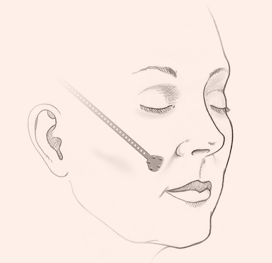 illustration of Endotine Midface implant pulls and lifts cheek tissue and is placed from middle of cheek towards top of ear