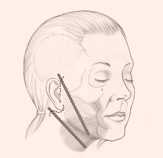 illustration of locations for Endotine Ribbon implant in neck and jowl