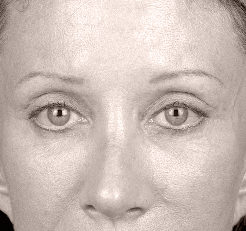 female patient after Endotine Brow, forehead procedure with brows lifted and younger look