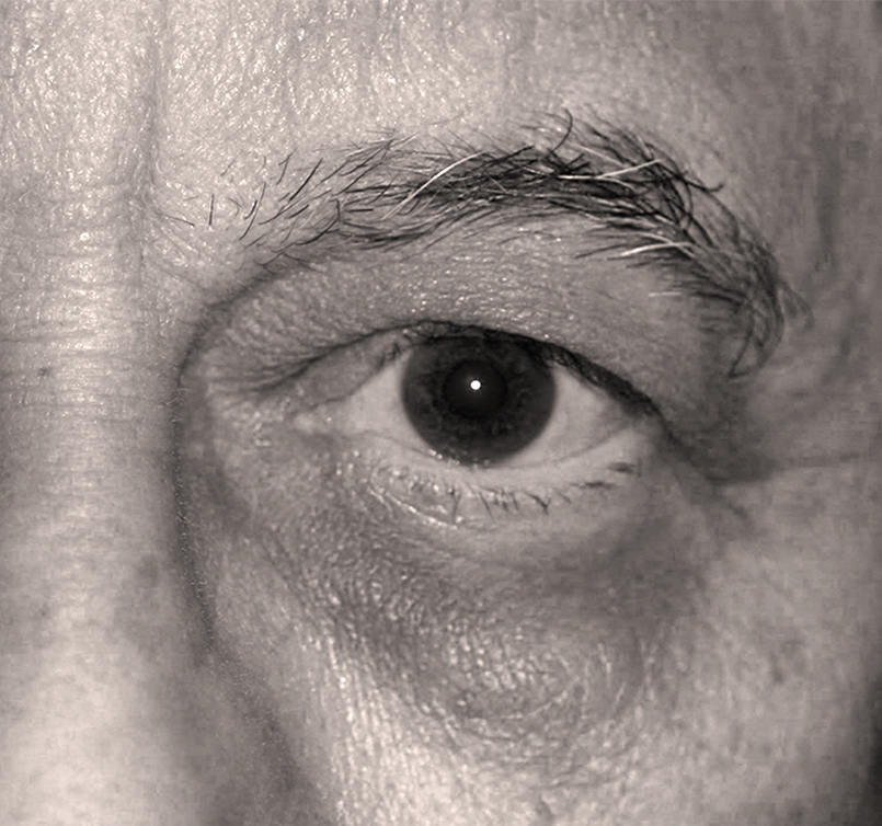 male patient before Endotine Direct Brow procedure with drooping eyelid skin
