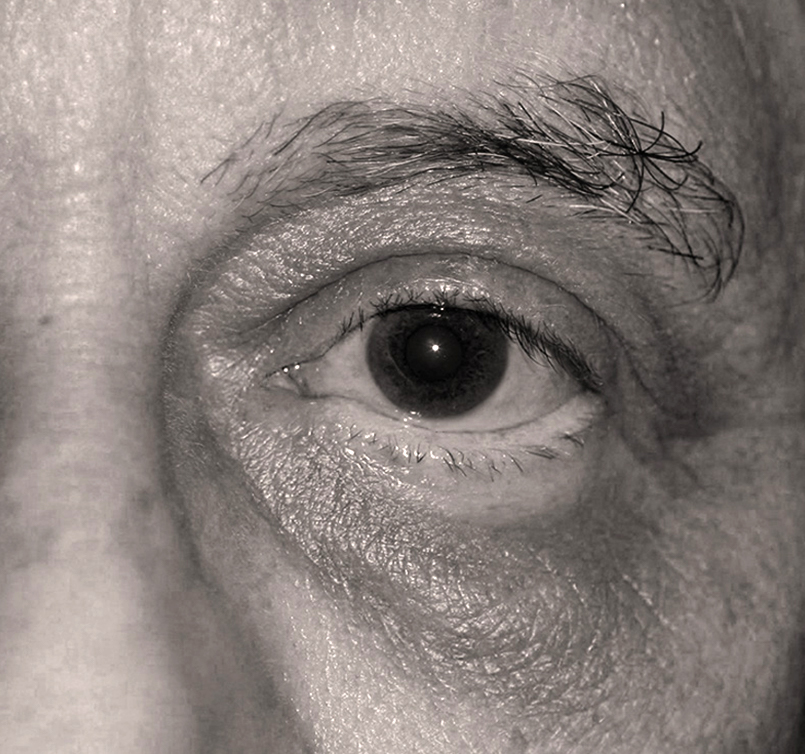 male patient after Endotine Direct Brow procedure with younger eyes