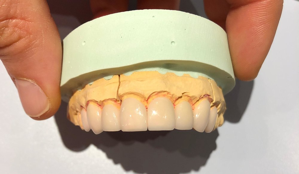 We may elect to cover all of the teeth that appear in the smile line.