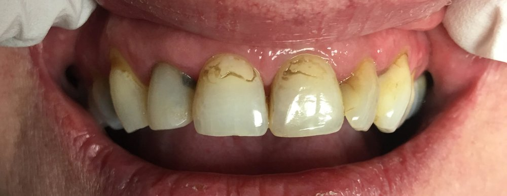 Preoperative photo: There is stain around the margins of composite resins, inter-proximal caries.