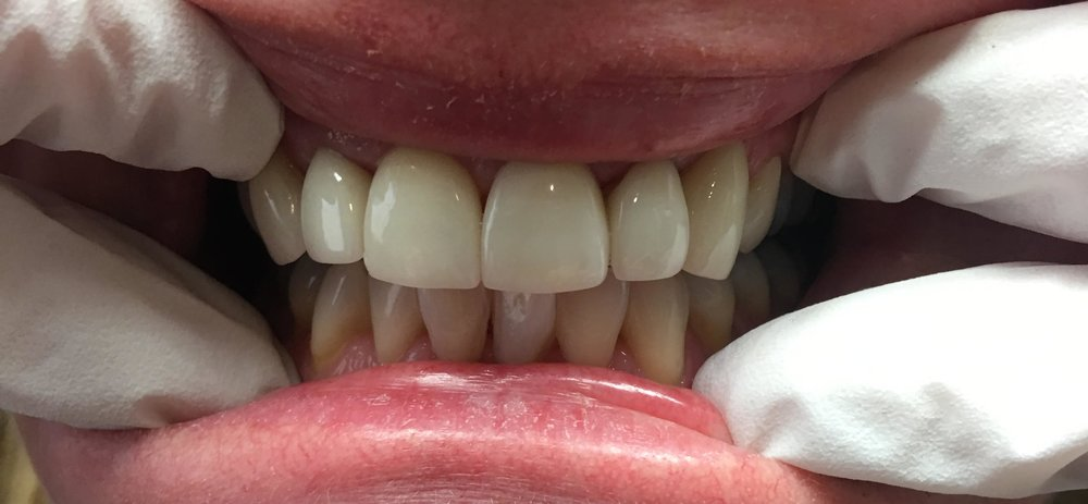 After bonding the veneers into place.