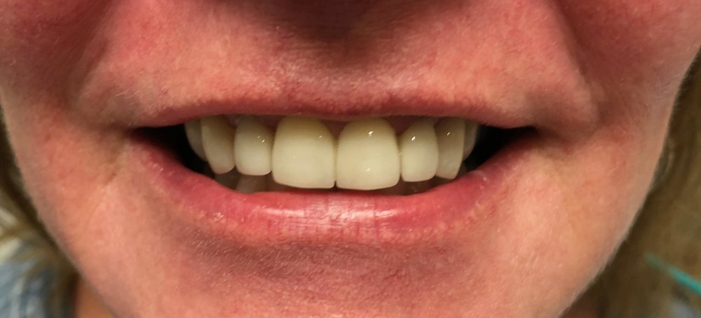 Two years post treatment. The restorations are doing well. Emax veneers don't tend to pick up stain the same way composite resin does over time.