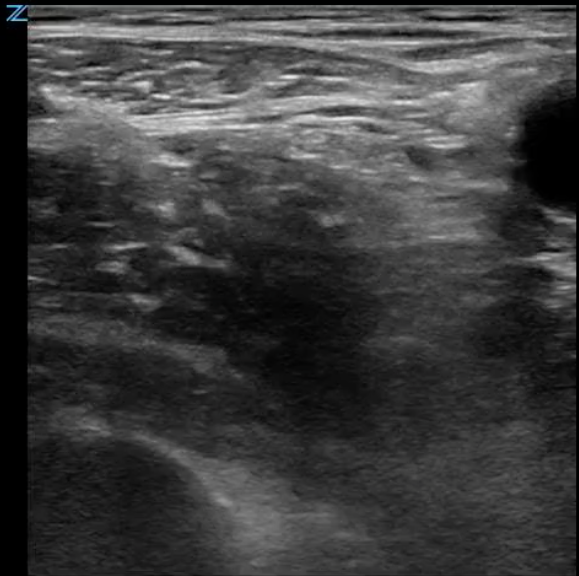 Ultrasound image showing another example of anatomy.