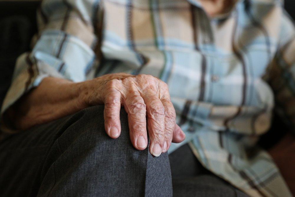 Age Spots -