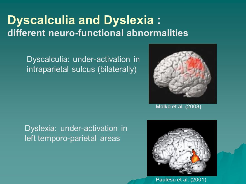 Dyscalculia number dyslexia