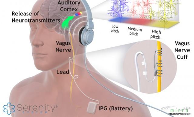 TinnitusVagusStimulation.jpg