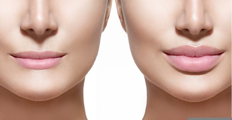 Everything You Need to Know About Dermal Fillers -