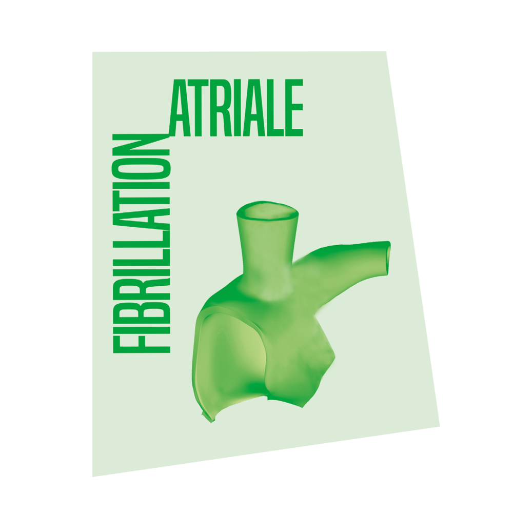 Fibrillation Atriale