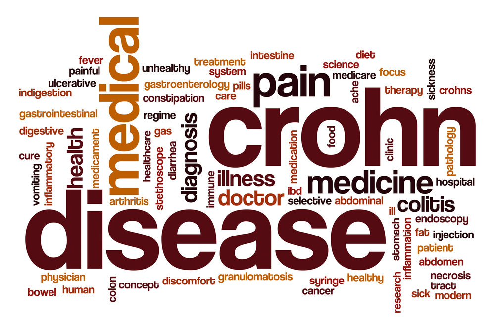What you need to know to take the first steps to start treating Crohn's Disease