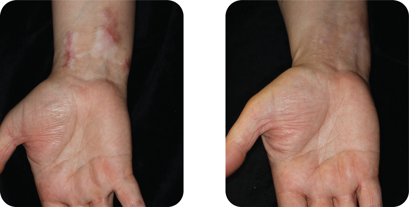3 months after 4 treatments, with 1 month between treatments