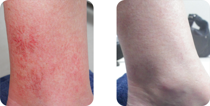 1 month after 4 treatments
