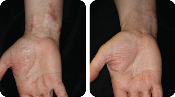 Scar Removal, Skin Specialist