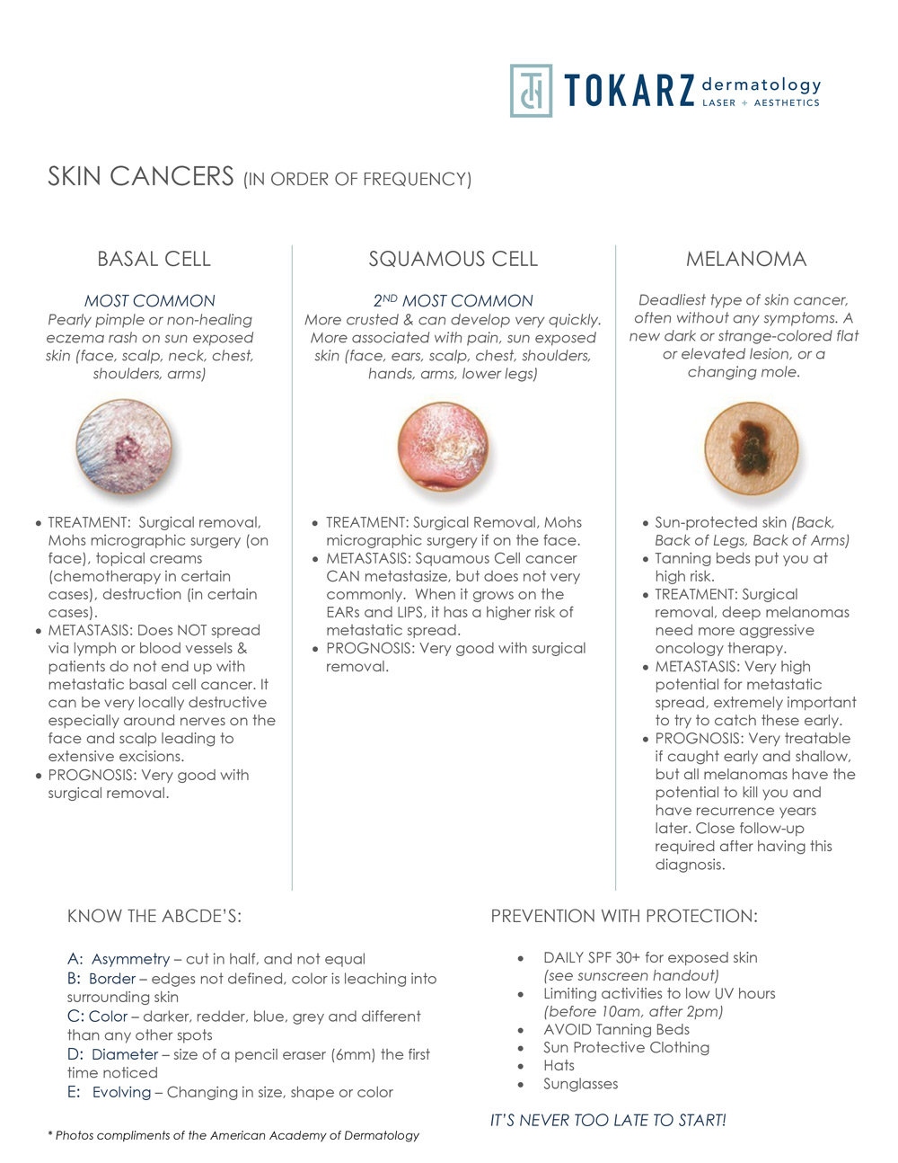 Skin Cancers & Prevention