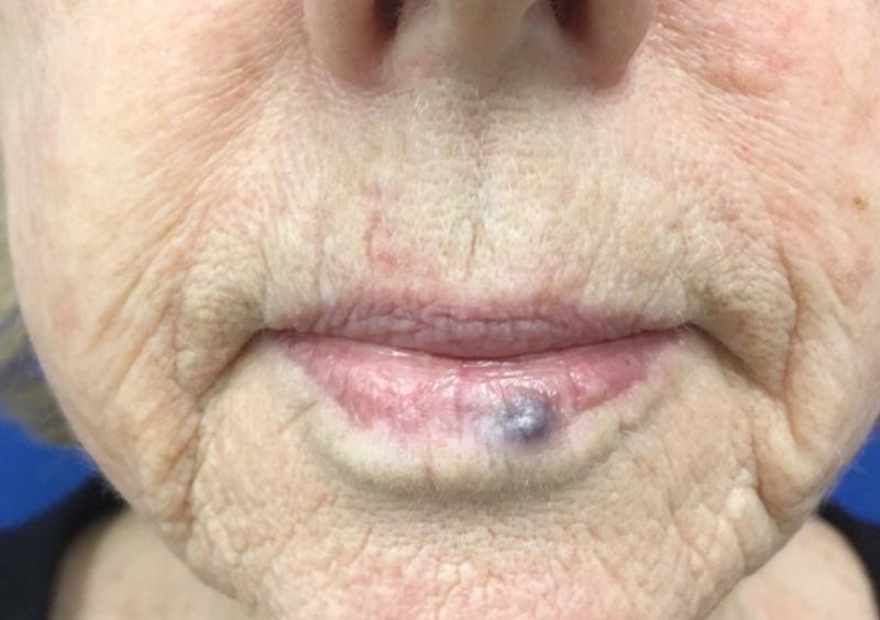 Venous Lake Benign Lesion Removal Dermatologist