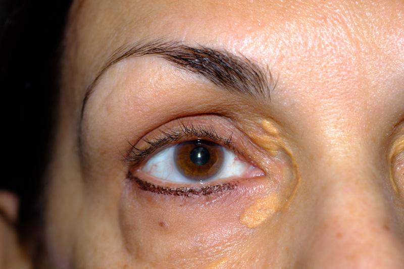 Xanthelasma Benign Lesion Removal Dermatology