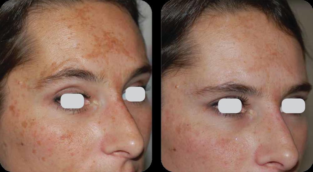 2 months after 1 treatment