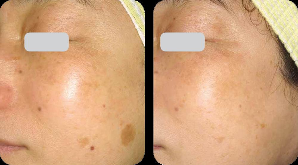 3.5 months after last treatment