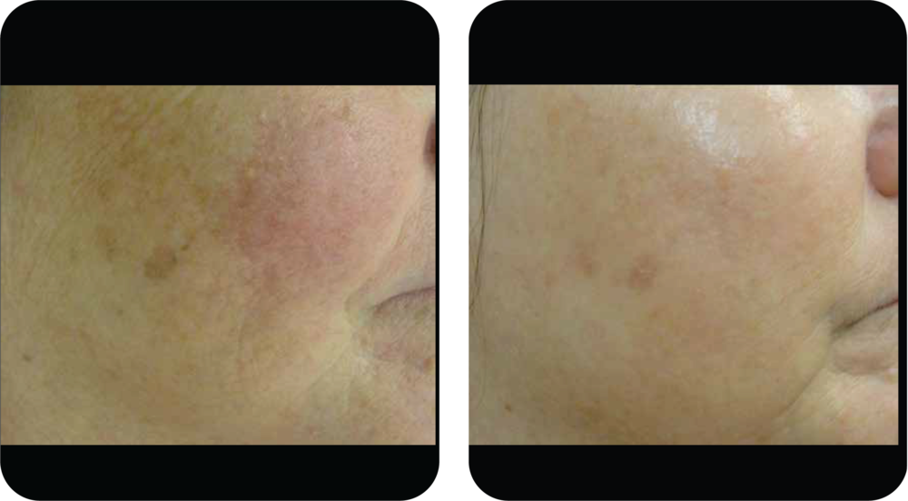 1 month after 3 treatments with 5-6 weeks between treatments
