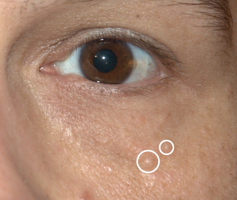 Syringomas Benign Lesion Removal Dermatology